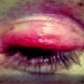 Oeil en sang